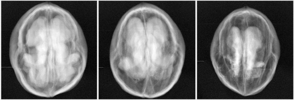 x-ray-sorting-walnuts-2